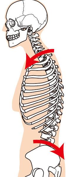 手術痕は、かなり体を歪ませる